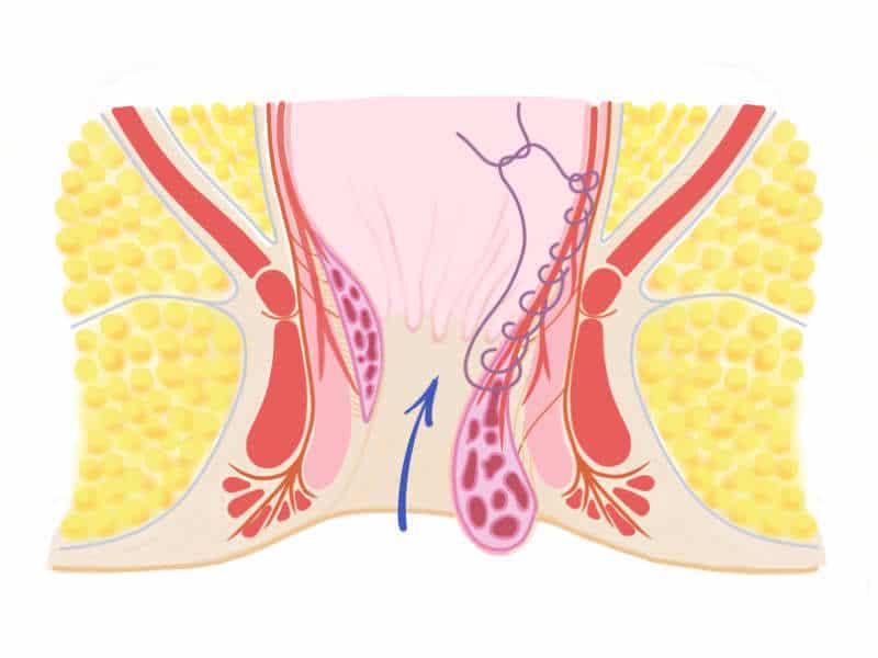 Abbinden und Fixieren der Hämorrhoide